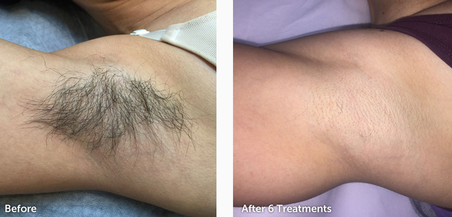 before-after-hair-removal-new