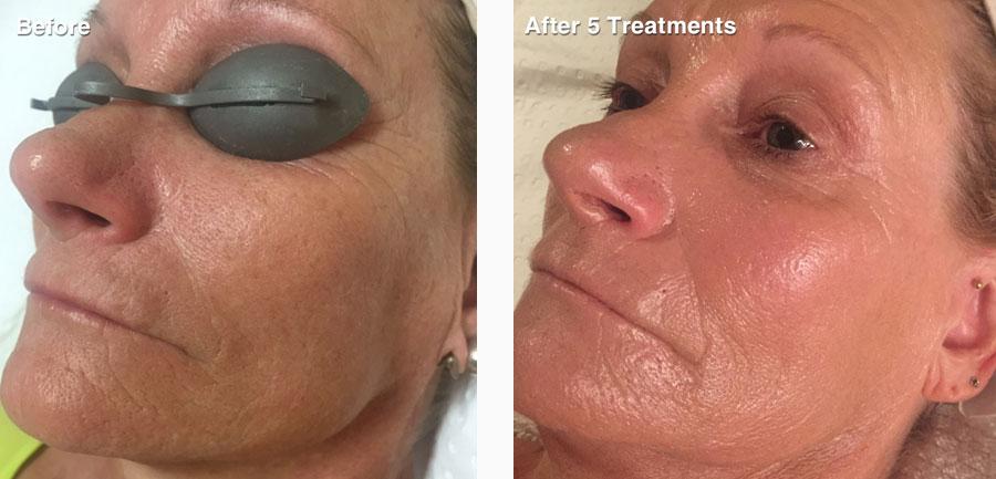 before-after-skin-rejuvenation-new