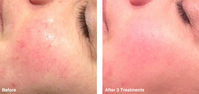 before-after-skin-rejuvenation1