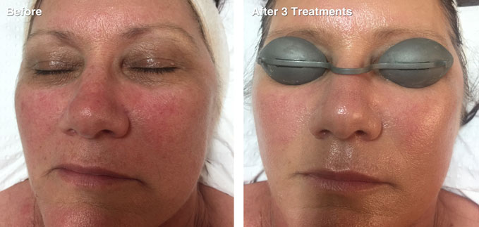 before-after-skin-rejuvenation5