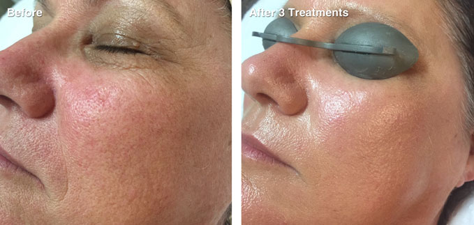 before-after-skin-rejuvenation6